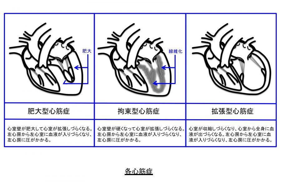 肥大型心筋症、拘束型心筋症、拡張型心筋症の図解